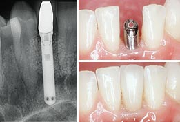 A single dental implant replaces the missing tooth